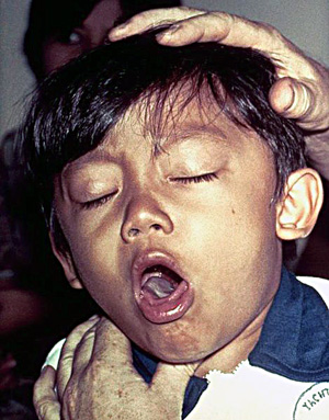A young boy coughing due to pertussis. Photo courtesy of Wikipedia